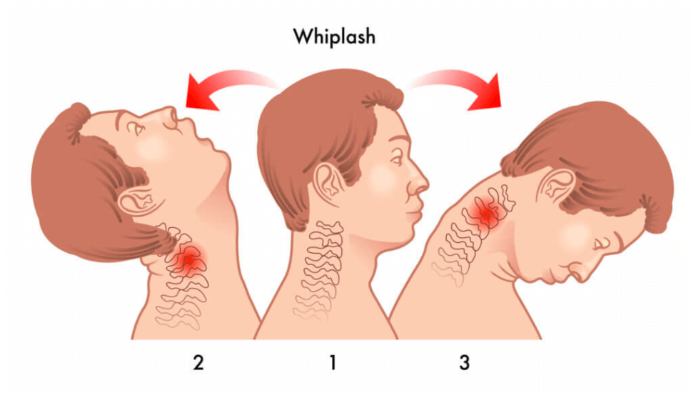 Lakewood Chiropractic Reviews | Acute Chiropractic